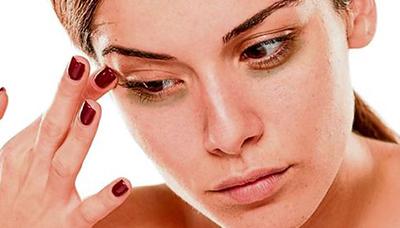 olheiras-causa-preocupacao-nas-mulheres-131071-article